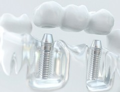 model dental implant bridge restoration