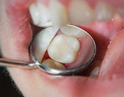 Closeup of smile after dental treatment