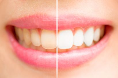 Does Whitening Toothpaste Work As Well As Teeth Whitening In Newark
