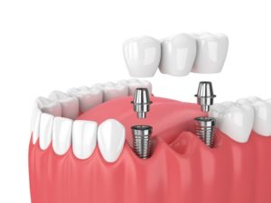 dental bridge supported by two dental implants in Newark